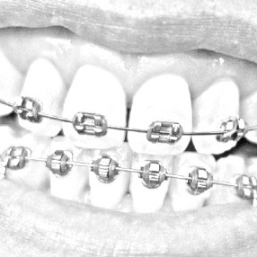Affordable braces in Melbourne eastern suburbs